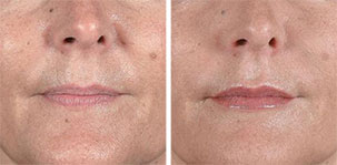 Treatment of Nasolabial Folds. Marbella Vein & Beauty CLinic in Spain.