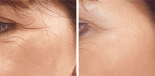 Correct of superficial lines, even in very sensitive skin areas. Marbella Vein & Beauty CLinic in Spain.