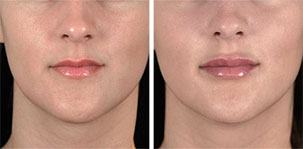 Natural Volume for Lips. Marbella Vein & Beauty CLinic in Spain.