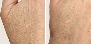 Skin Rejuvenation Dermal Filler for an refreshed, youthful look. Marbella Vein & Beauty CLinic in Spain.