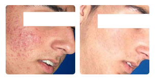 IPL acne treatment Before and After Photo. Marbella Vein & Beauty CLinic in Spain.
