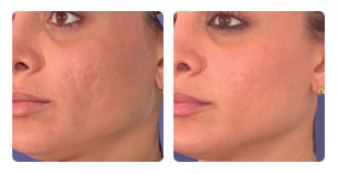 Laser skin resurfacing treatment Before and After Photo. Marbella Vein & Beauty CLinic in Spain.