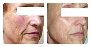 Laser skin photo resurfacing Before and After Photo. Marbella Vein & Beauty CLinic in Spain.
