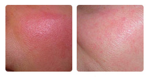 IPL vascular and pigmented lesion Before and After Photo. Marbella Vein & Beauty CLinic in Spain.