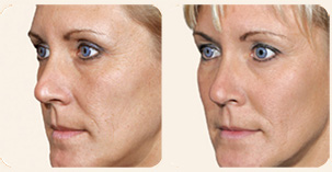 Filler Treatment Cheekbones Before and After Photo. Marbella Vein & Beauty CLinic in Spain.