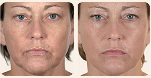 Filler Treatment Face contours, nasolabial folds and lip enhancement Before and After Photo. Marbella Vein & Beauty CLinic in Spain.