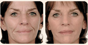 Filler Treatment Full face treatment Before and After Photo. Marbella Vein & Beauty CLinic in Spain.